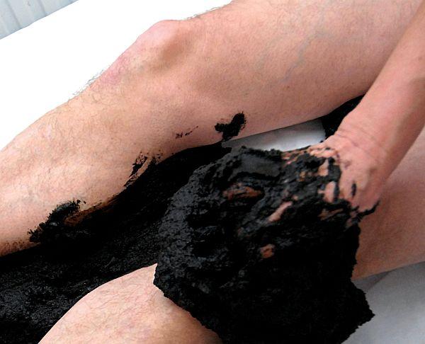 Курорт харкань лечение псориаза